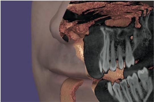 dentalcad exocad