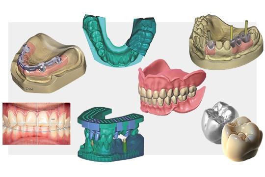 exocad dentalcad implantatplanung