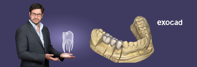 exocad dentalcad software cad cam loesungen