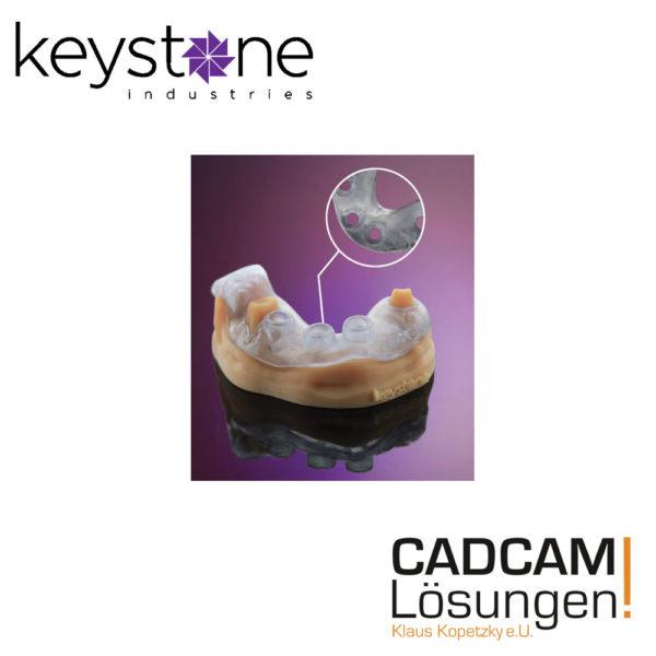 keystone keyguide bohrschablonen 3d druck print cadcam loesungen 1