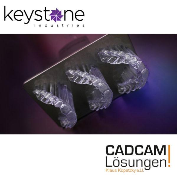 keystone keysplint soft keyprint aufbisschiene cadcam loesungen 3d druck print 1
