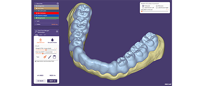 650 auf 450 exocad dentalcad galway bite splint include tooth