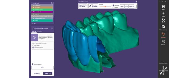 650 auf 450 exocad dentalcad galway digital waxup models